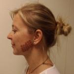 Die Anwendung von Gittertapes bei chronischen Schmerzen und Entzündungen - ein Fallbeispiel